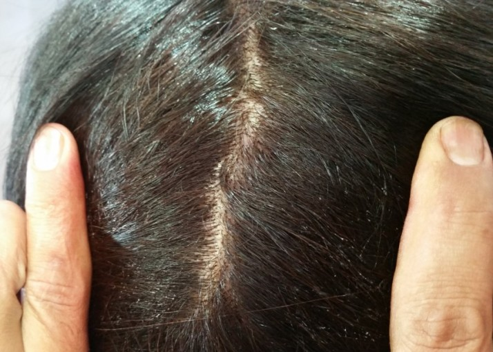 צבעי השיער החדשים של שוורצקופף פרופשיונל IGORA ROYAL Absolutes by Schwarzkopf Professional